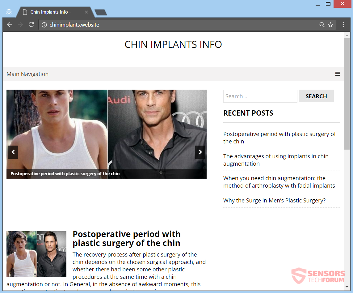 stf-chinimplants-website-chin-implants-ads-adware-main-web-page